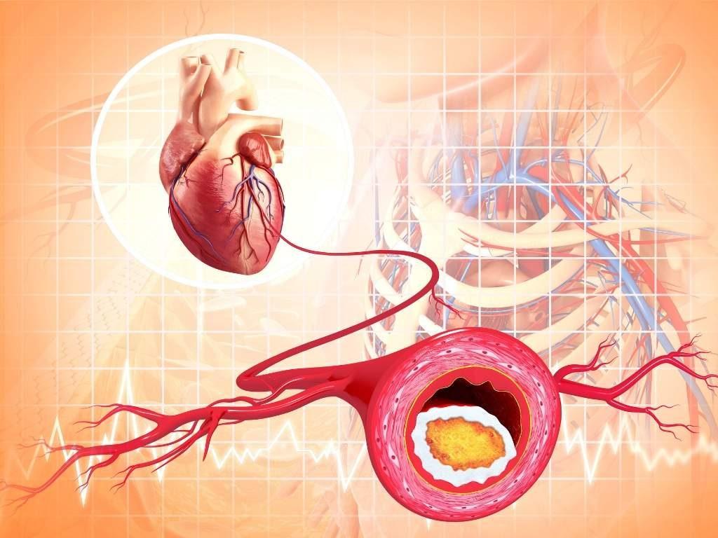 dierlijke vetten en cholesterol