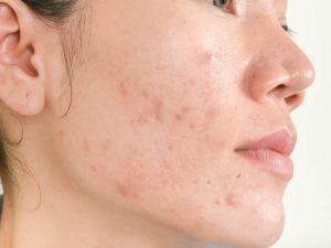 keto dieet en acné