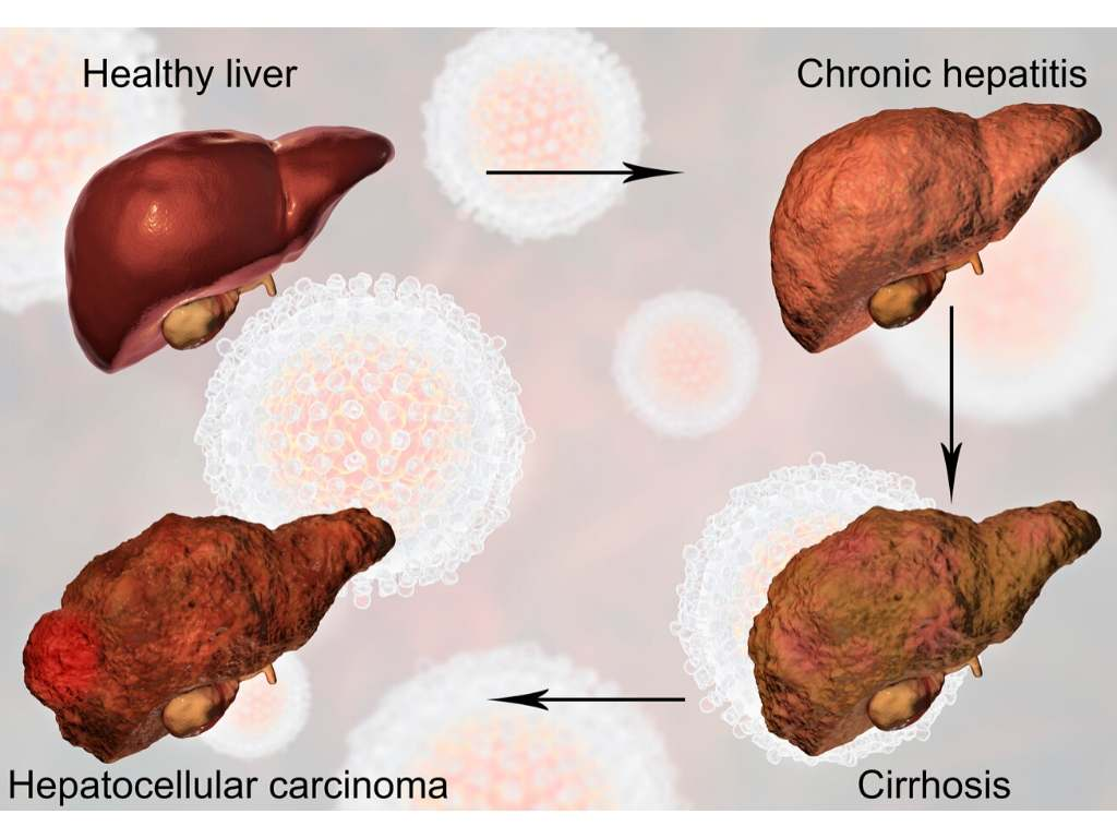 Vervette lever: oorzaak, voeding en herstellen