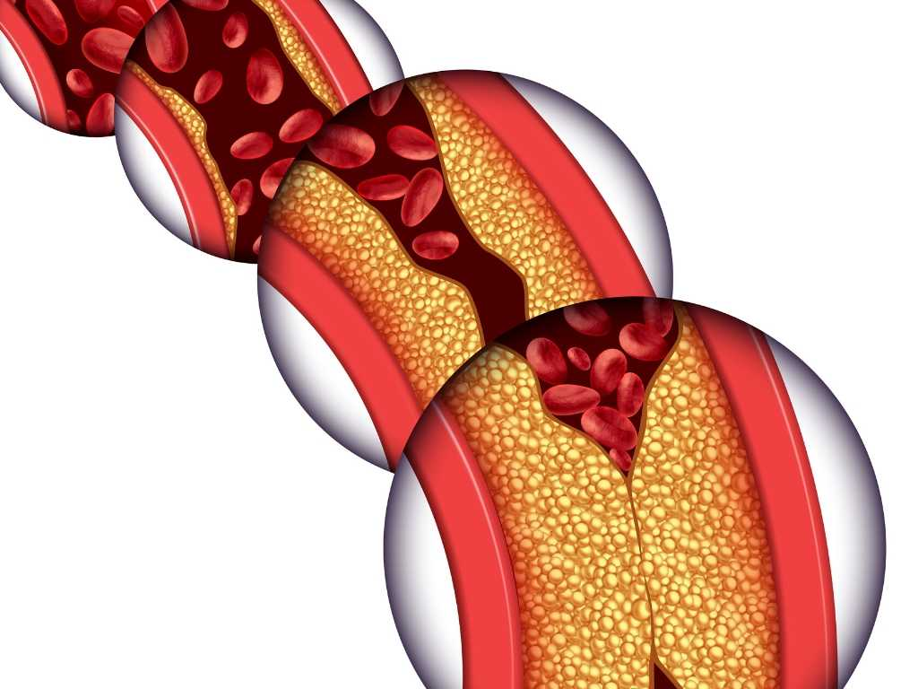 bloedvaten die dichtslibben