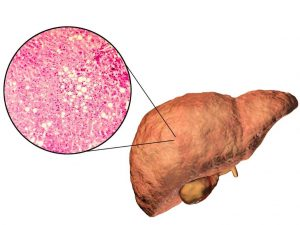 Choline tekort en leververvetting